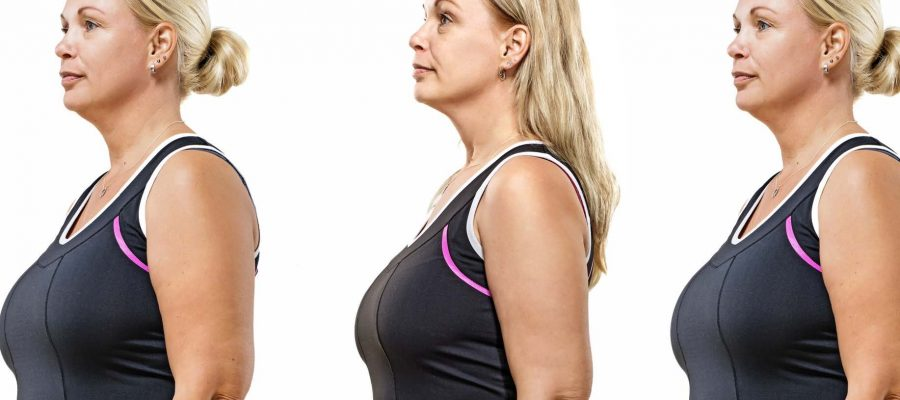 HodgeonRepeat blog - Stop Yo-yo dieting - picture of woman at different weights