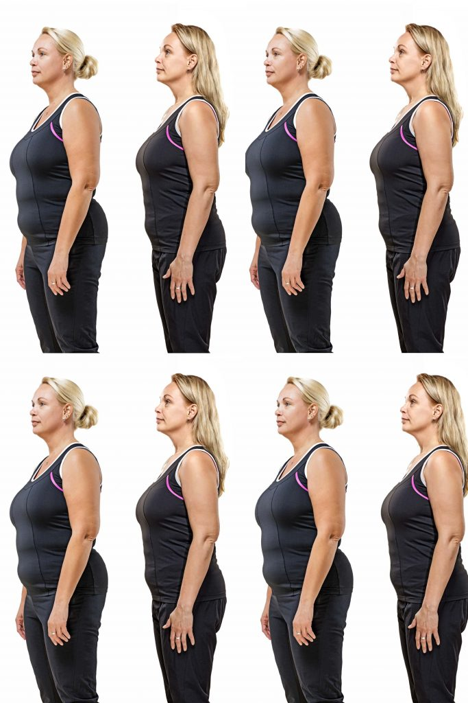 HodgeonRepeat blog - repeating image of woman before and after weight loss - yo-yo dieting